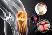 بهترین و موثرترین روش ها برای درمان و پیشگیری از آرتروز