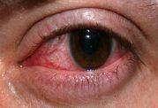 پارگی شبکیه چشم چه علائمی دارد