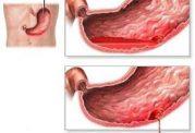 خطرات خونریزی گوارشی برای بدن