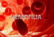 هموفیلی چه نوع اختلال خونی است؟