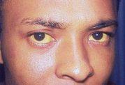 هیپربیلیروبینمی (Hyperbilirubinemia)