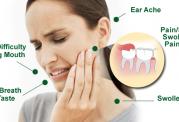 مشکلات مربوط به دندان عقل