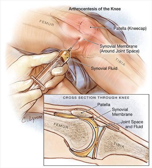 شباهت آرتریت عفونی با برخی بیماری ها