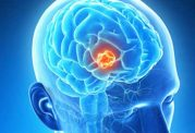 نابودی سلول های تومور سرطان مغز با تلفیق چندین دارو