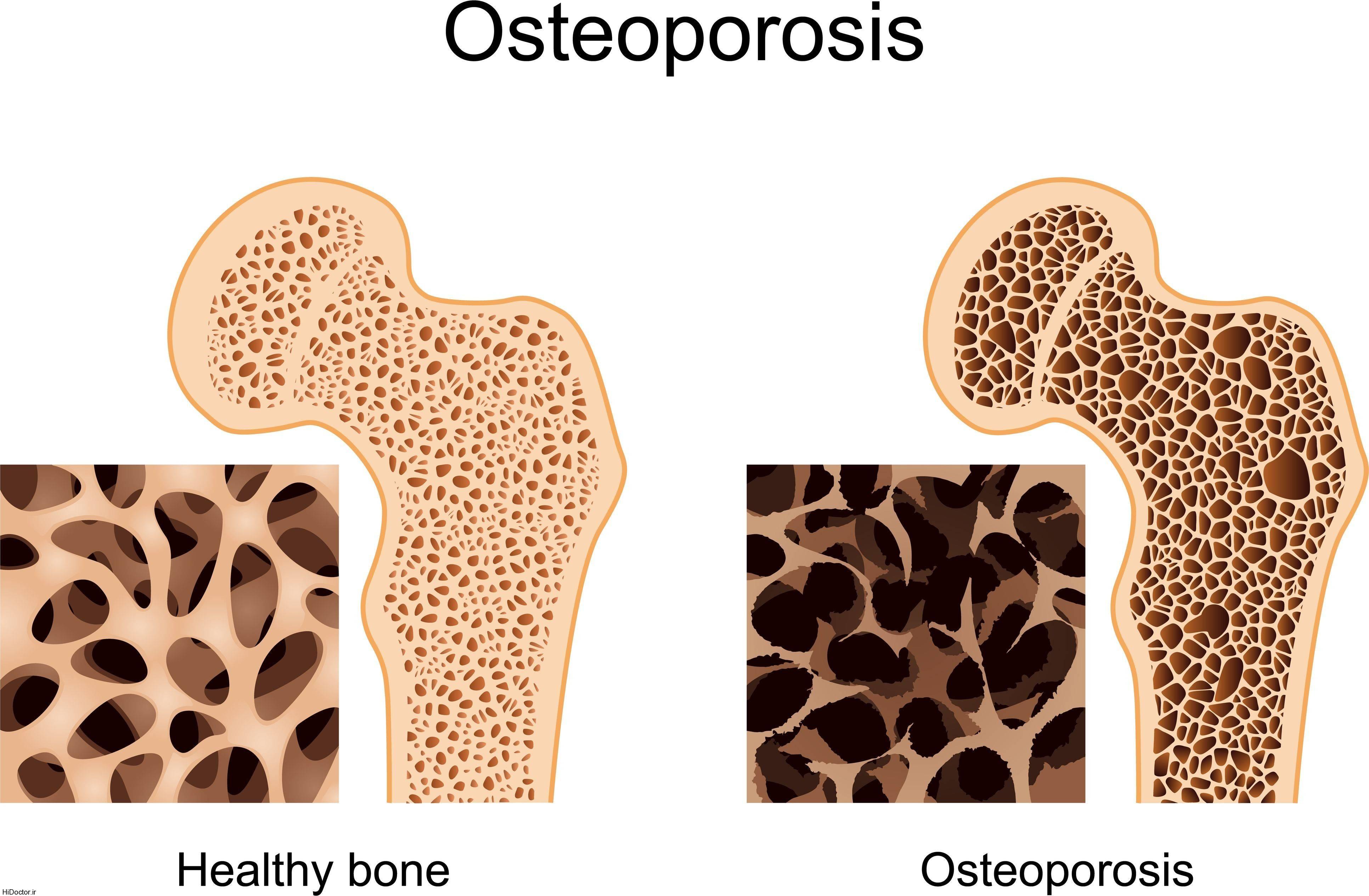 داروهای مرتبط با پوکی استخوان