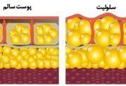 علائم سلولیت و راه های تشخیصی