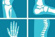 نکات مهمی که باید درباره آرتریت روماتوئید بدانید