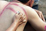 روش سکته درمانی عجیب در اندونزی