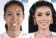 جراحی چانه باعث زیبایی منحصر به فرد دختر تایلندی شد