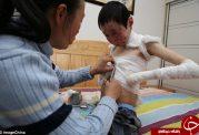 پسری که به خاطر بیماری پوستی شکننده است