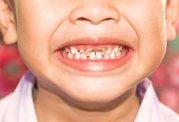 میزان شیوع پوسیدگی دندان در ایران
