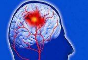 بیماران مبتلا به میگرن بیشتر به سکته مغزی دچار می شوند