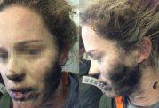 سوختگی صورت دختر جوان در اثر انفجار باتری