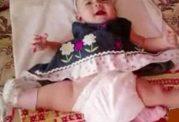 نوزادی که مجبور بود با 3 پا زندگی کند