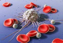 روش کوچک شدن تومورهای سرطانی در کبد
