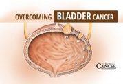 سرطان مثانه و مقابله با آن