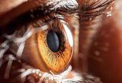 آیا معاینه چشم میتواند مشکل گردش خون در پا را به ما نشان دهد؟