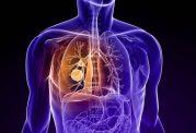 روش های تغذیه ای موثر برای سرطان ریه