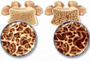 3 نکته مهم ورزشی برای جلوگیری از پوکی استخوان
