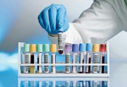 کشف روش های جدید برای نگهداری اعضای بدن