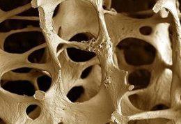 چه زمانی برای پیشگیری از پوکی استخوان مناسب است؟