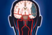 اطلاعات کامل در زمینه سکته مغزی