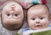 دوقلوهای 16 ساله از پزشکانشان تشکر کردند+3 عکس