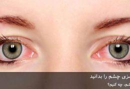 8 علت قرمزی چشم را بدانید