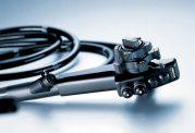 کم کردن حجم معده با روش های غیر جراحی
