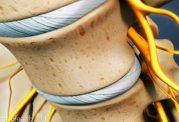 از بین بردن قوس کمر با روش های درمانی مختلف