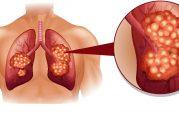 سرطان ریه در غیر سیگاری ها به چه علت است؟