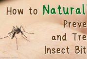 مقابله با گزش حشرات موذی در طبیعت
