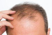 داروهای ضد ریزش مو خطر ناتوانی جنسی را افزایش می دهند