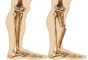 دستورالعملی برای درمان خانگی شکستگی استخوان