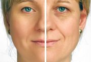 بهترین روش درمان برای رفع سیاهی دور چشم