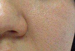 بستن منافذ روی پوست با روش های ساده