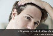 روش های جدید برای مردانی که طاسی و ریزش مو دارند