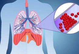 تغذیه در بیماران آمبولی ریه
