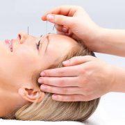 درمان سردرد ناشی از آسیب مغزی با استفاده از طب سوزنی