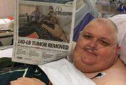 تومور 60 کیلویی با موفقیت از بدن بیمار خارج شد