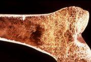 فناوری جدید برای مشاهده سلولهای استخوانی