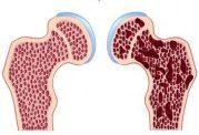 افزایش سستی با کمبود ویتامین D در بدن