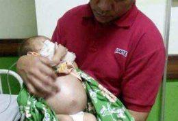 ورم عجیب شکم نوزاد اندونزیایی