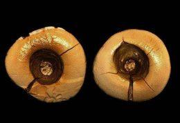 کشف نخستین دندانهای پرشده در ایتالیا