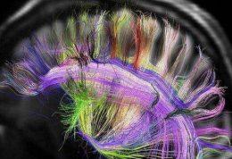 تقویت حافظه صوتی از طریق تحریک مغناطیسی
