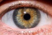 بررسی انواع عارضه ها در بدن از طریق چشم