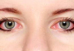 سرخی چشمانتان را جدی بگیرید