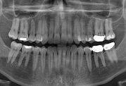 آمار بالای دندانهای پوسیده در ایران