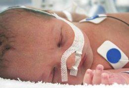 نقص عضو شدید نوزادان فرانسوی به دلیل مصرف داروی صرع