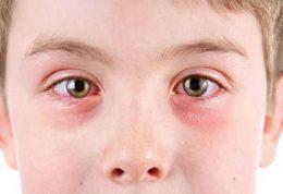 علل اصلی سوزش و قرمزی چشم و روش های درمان آن